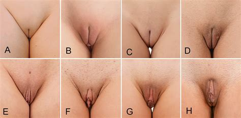 Poll Labia Minora From Hidden To Large Take Your Pick Xnxx Adult Forum
