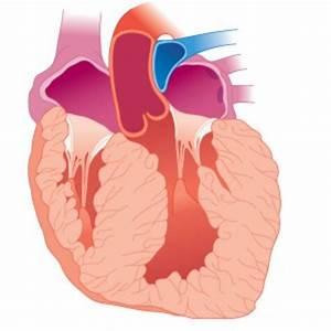 Гипертония миокарда левого желудочка сердца