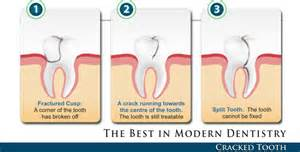 Cracked Tooth Dentist - Waterford - Oakland County Inability to bite down on tooth