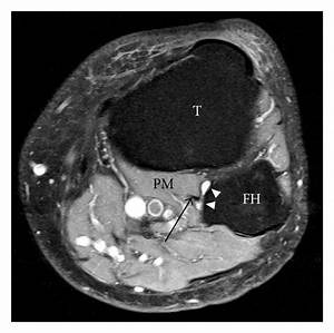 Mr Imaging Of Intra
