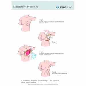 Mastectomy Procedure
