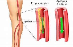 Диабет перемежающаяся хромота лечение