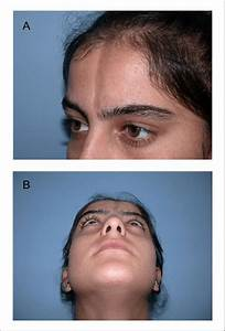 Preoperative View Of The Patient Of Linear Scleroderma  A