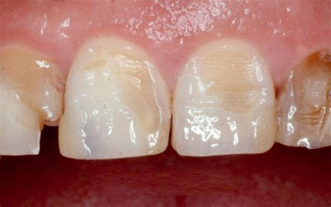 mondspoeling ontstoken tandvlees