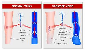 What Are Varicose Veins And How To Treat Them