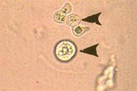 pseudoparasites yeast  pollen grain microscopy