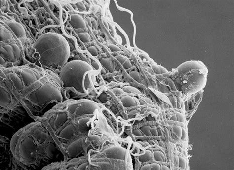 biological battle psu researchers work  catch