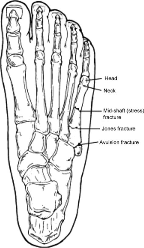 Ankle and Foot - Crashing Patient