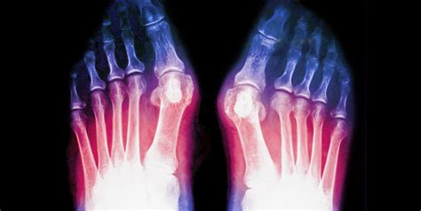 Jones Fracture Foot Symptoms