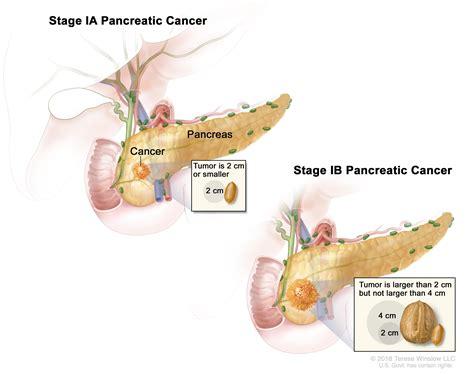 Pancreatic Cancer Treatment Pdqhealth Professional