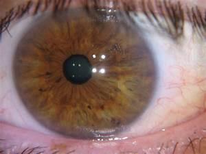 Iridology Spots In Eyes Iriscope Iridology Camera