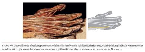 de anatomische les van dr nicolaes tulp door rembrandt