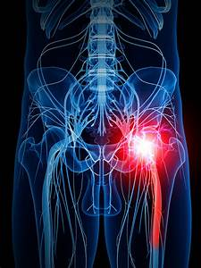 How To Get Rid Of Sciatica  Sciatic Nerve Pain  With 8