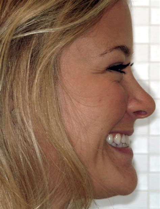 Virtual Smile Consultation