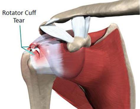 Average Settlement Amounts For Shoulder Rotator Cuff