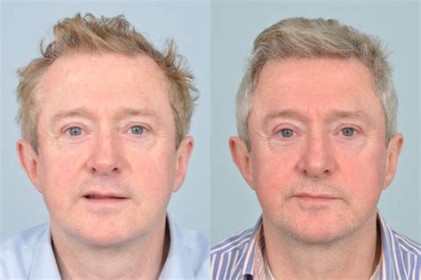 Britain's Top Surgeons - Hair Transplant Clinic UK