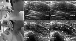 Ultrasonography  Us  Of The Lateral Neck Region For Guiding Bont