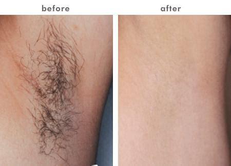 laser hair removal for light hair e light ipl rf permanent elight ipl rf skin rejuvenation