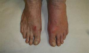 Diabetic foot rash pictures   Symptoms and pictures