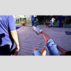 Breaking A Leg Like A Champ Youtube