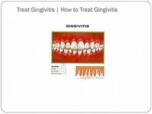 Gingivitis - Page 4 - Medical information and advice