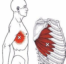 Pijn tussen ribben midden