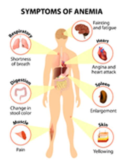 Iron Deficiency Anemia Symptoms in Women