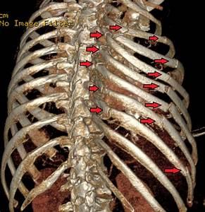 Flail chest - Wikipedia