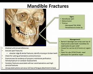 Back To Basics  Mandible Fractures