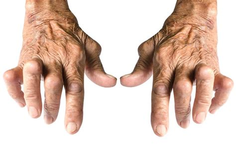 Arthritis In Hands Symptoms, Treatment, And Home Remedies. Commercial Photovoltaic Systems. Starting Salary Financial Advisor. Phd Thesis On Leadership U Verse Order Status. Cable Finder By Address Cool Air Conditioning. Term Life Insurance Low Cost. Moving Companies In Riverside Ca. Bankruptcy Lawyer Kansas City. History Of Graphic Design Keller Pest Control