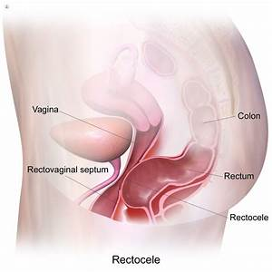 Rectocele  What Is It  Symptoms  Causes  Prevention And