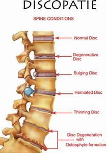 Pin On Health   Pain Management  Syringomyelia  Chronic