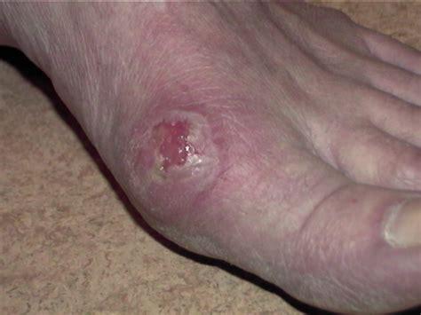 pied de le boule hallux valgus centre pied et cheville