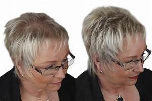 Kurzhaarfrisuren Bei Dünnem Haar : sch tthaar gegen haarausfall d nnes haar und kahle stellen ~ Frokenaadalensverden.com Haus und Dekorationen