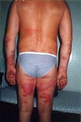 Станислав мезенцев лечение псориаза