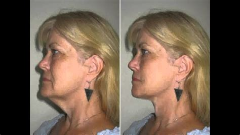 double chin exercise    natural results