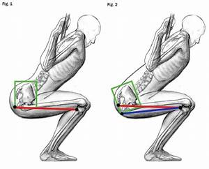 Could Squatting    Deadlifting With Good Form Be Increasing Apt Anterior Pelvic Tilt