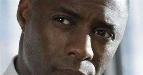 Hair Implants Geneva Al 36340 Idris Elba Without Hair Editorial Reasons Why