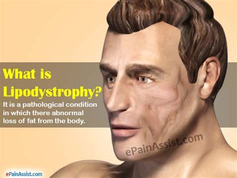 Types Of Lipodystrophy & Its Treatment. Managed Services Agreement Stem Cell Banking. Term Life Insurance Aarp Travel Apps For Ipad. Florida School Of Massage Website Builder Seo. Shaving Neck Irritation Mesa Az Storage Units. Car Dealership In Chicago A Appliance Service. Bachelor Of Science Degrees Online. Painting My House Interior Garage Door Single. Dish Top 200 Channel Numbers