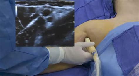 ultrasound guided axillary brachial plexus block video