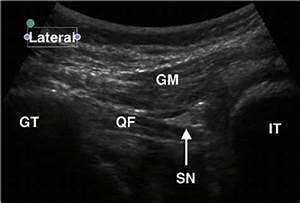 Ultrasound Image Of Subgluteal Approach To The Sciatic Nerve  Gm