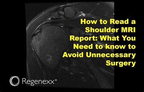 Shoulder MRI Report