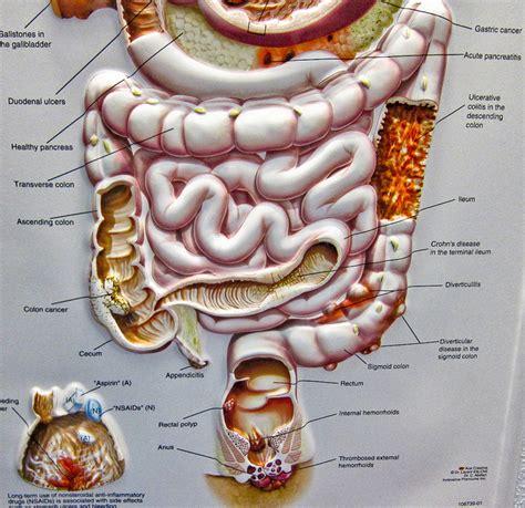 Entzündung im darm darmkrebs