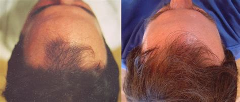 Propecia Shedding After 1 Year by Hair Loss Treatment Pictures