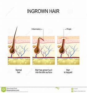 Ingrown Hair After Hair Removal And Shaving Stock Vector