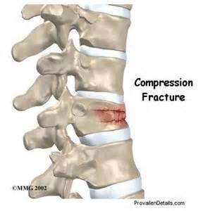 Degenerative Arthritis Spine