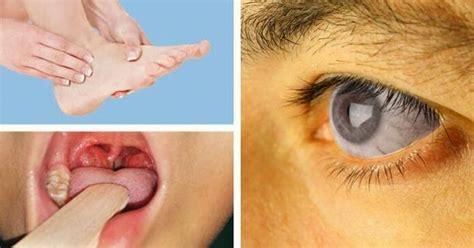 signs     vitamin  deficient mc