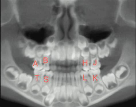 teeth numbers  radiology radiologyer