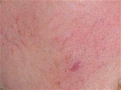 vascular lesion treatment  mayoral dermatology  coral