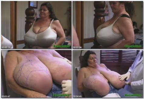 gigantomastia sex